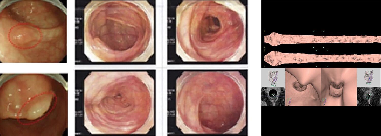 大腸ドック画像
