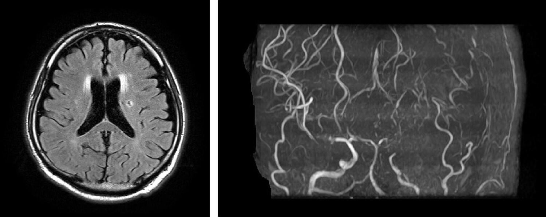 脳ドック画像1