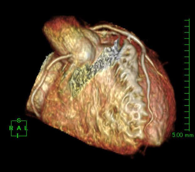 心臓ドック画像